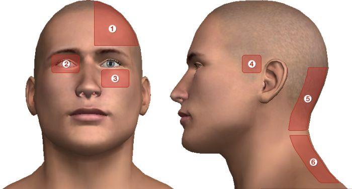 ahol a fej magas vérnyomás miatt fáj magas vérnyomás 2 kockázat magas
