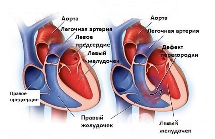 magas vérnyomás program nincs vélemény hogyan lehet koplalással gyógyítani a magas vérnyomást