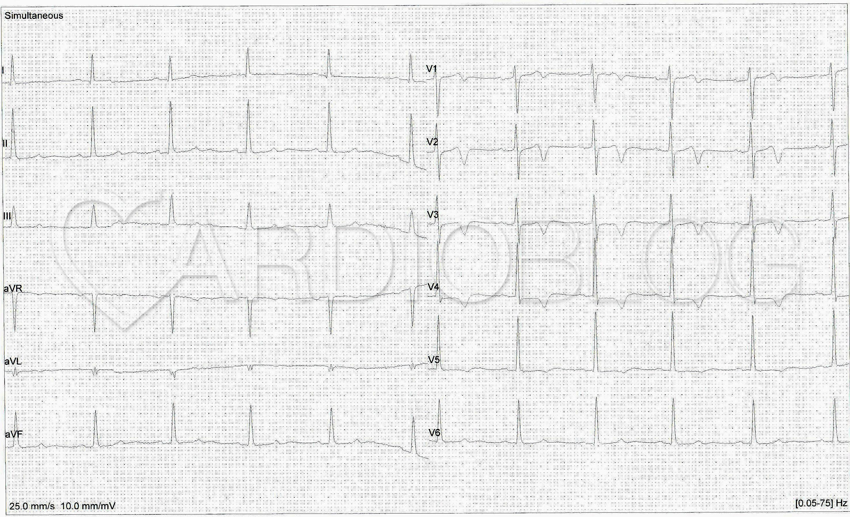a hipertónia látható-e az EKG-n vese magas vérnyomás