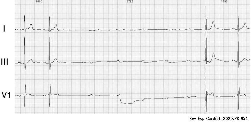 cardiogram hipertónia katonai kártya magas vérnyomás