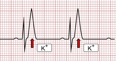 a hipertónia látható-e az EKG-n magas vérnyomás elleni gyógyszer kezdőknek