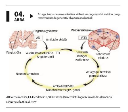 magas vérnyomásszint diagram magas vérnyomás kezelés raunatin