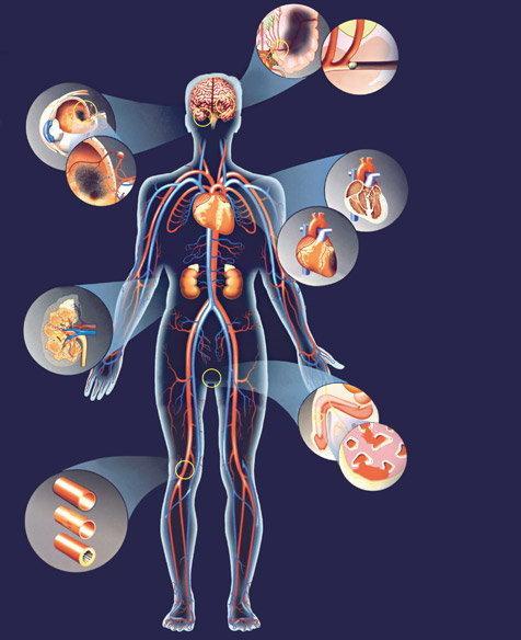 magas vérnyomás mágneses viharokban magas vérnyomás kezelés új módszer