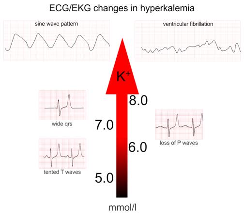 a hipertónia látható-e az EKG-n hipertónia pszichiátria