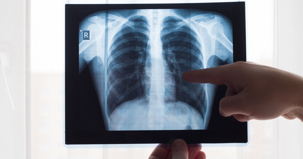 folyadék a tüdőben magas vérnyomás esetén