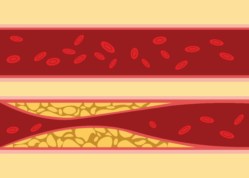 hipertónia megelőző videó egy új generációs gyógyszer a magas vérnyomás kezelésére