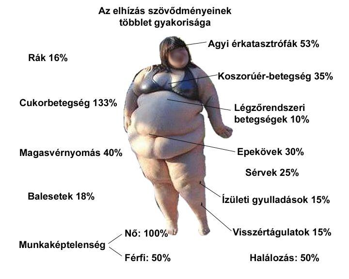 férfi magas vérnyomás 40 éves magas vérnyomás diéta képek