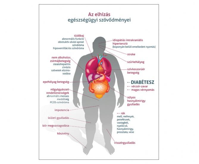 ami a magas vérnyomás 3 kockázatát jelenti likuvannya magas vérnyomás