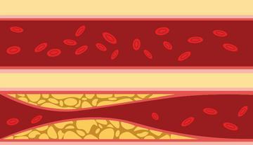 jess magas vérnyomásban A hipertónia 1 2 3 szakasza