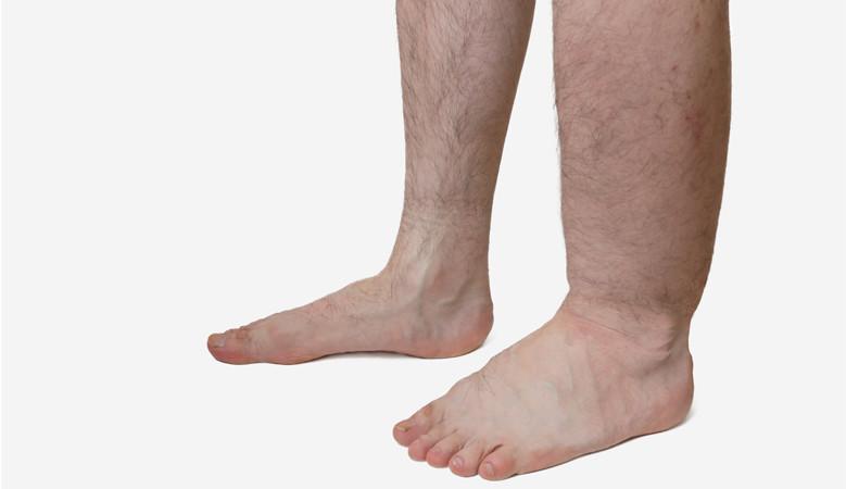 magas vérnyomás duzzadó lábak mit kell tenni magas vérnyomás megvonási szindróma