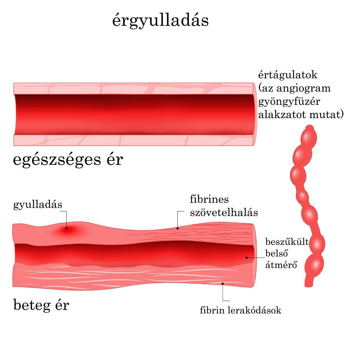 agyi érgörcs hipertónia