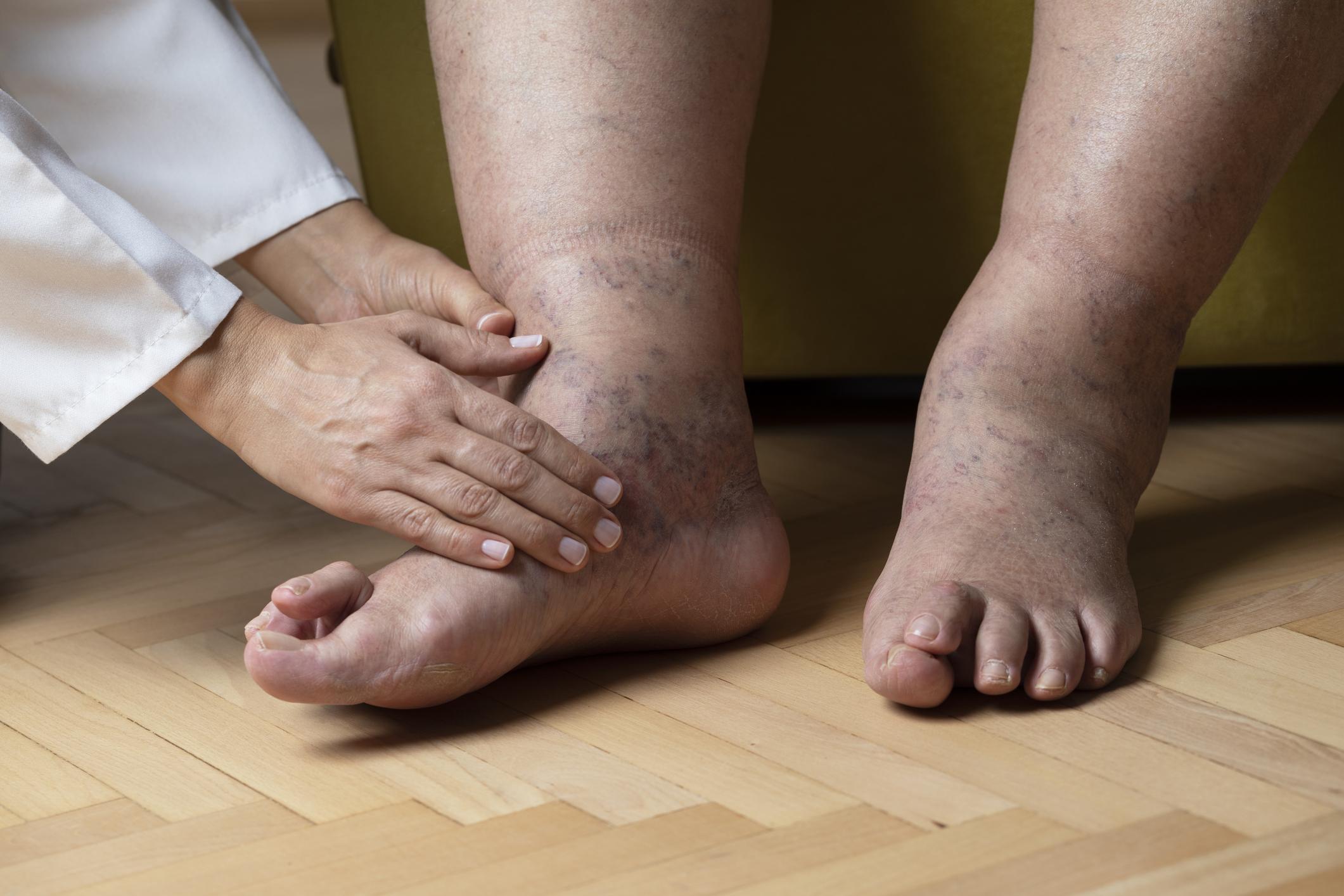 magas vérnyomás duzzadó lábak mit kell tenni mit ér el a magas vérnyomás