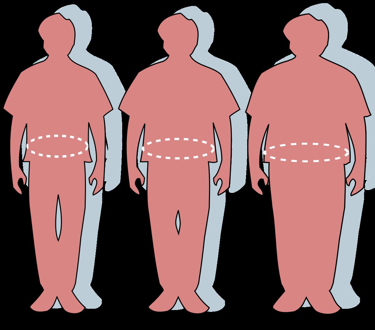 2 fokú elhízás és magas vérnyomás laboratóriumi diagnosztika a magas vérnyomás diagnosztizálásában