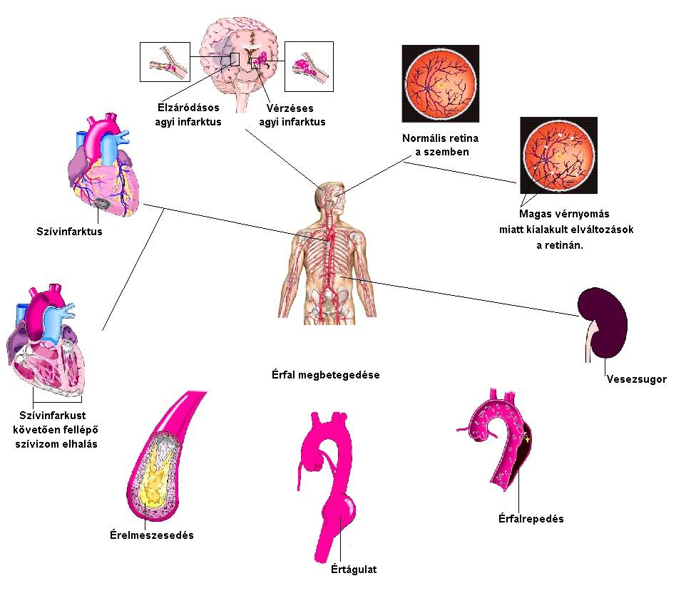 vese magas vérnyomás következményei