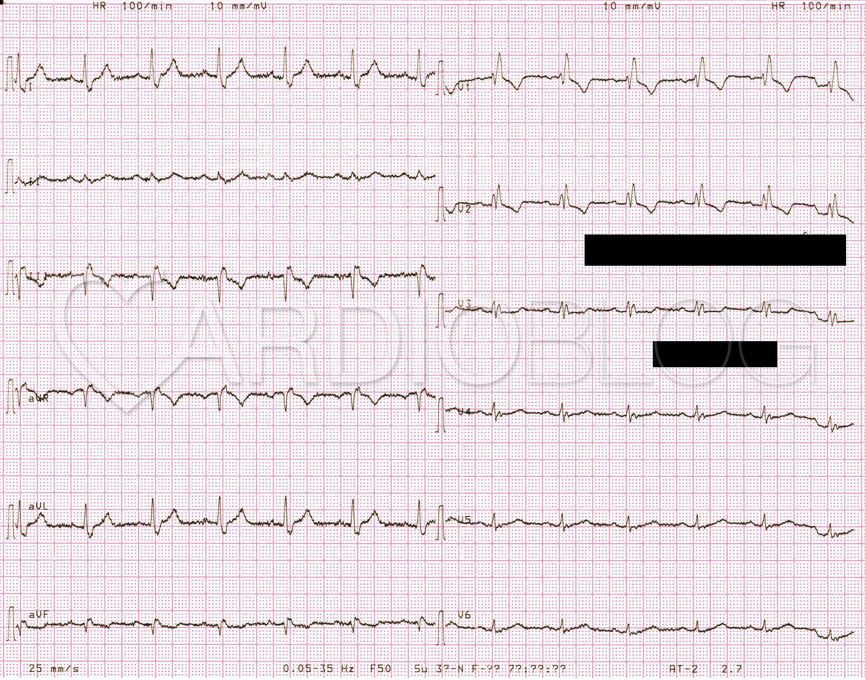 a hipertónia látható-e az EKG-n magas vérnyomás előnyei és hátrányai