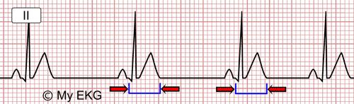 a hipertónia látható-e az EKG-n magnézia magas vérnyomás