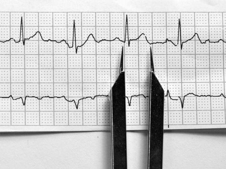 a szív EKG-je magas vérnyomásban