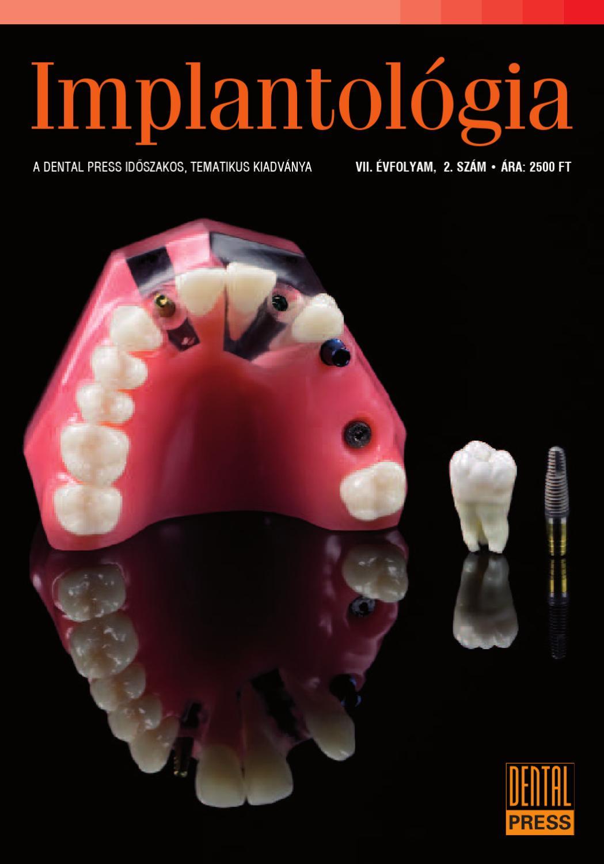 Implantátumok és magas vérnyomás, Mi az az implantációs műtét?