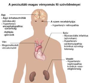 a fej magas vérnyomásának tünetei hogyan lehet hipertóniával élni fiatalon