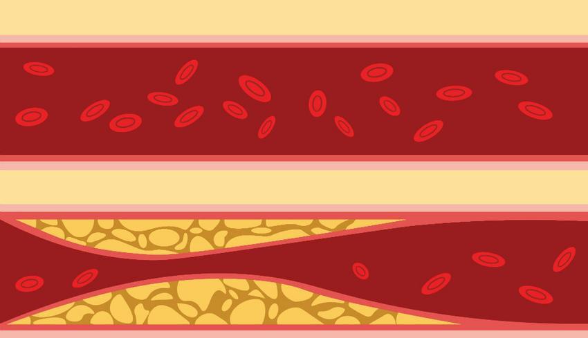 anyagcserezavar magas vérnyomással