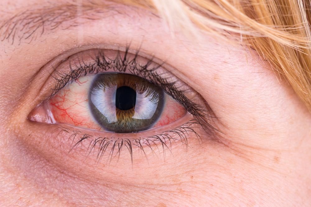 a szem magas vérnyomás miatt fáj a magas vérnyomás agyi hatásai