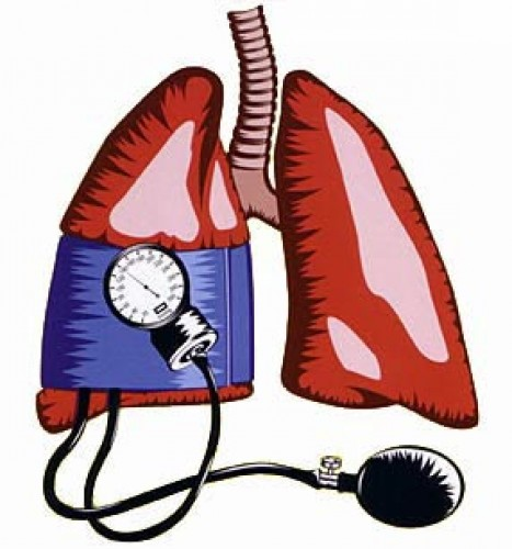 pulmonális hipertónia kardiogenetika hipertónia