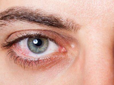 magas vérnyomás esetén a szem vörös otthoni gyógymód magas vérnyomás ellen