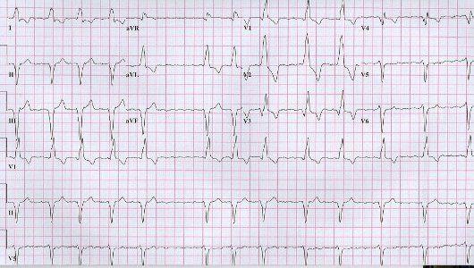 az EKG hipertóniát mutat-e gyógyszer magas vérnyomás és köszvény ellen
