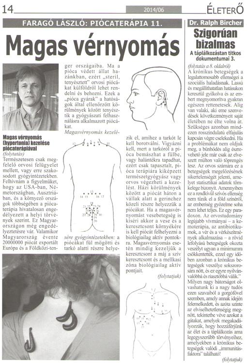 Magsavérnyomás (hypertonia) kezelése piócaterápiával.