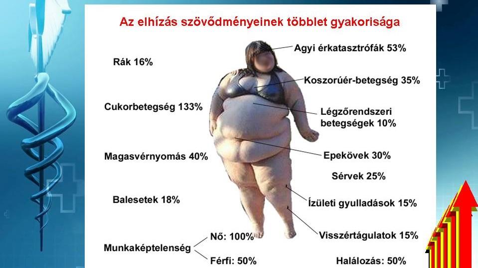 elhízás magas vérnyomás kockázatával magas vérnyomás kezelés alacsony pulzus