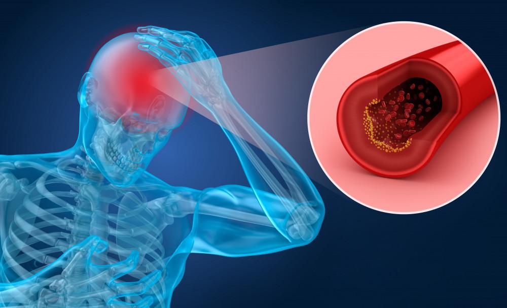 magas vérnyomás karkötő vese okozta magas vérnyomás