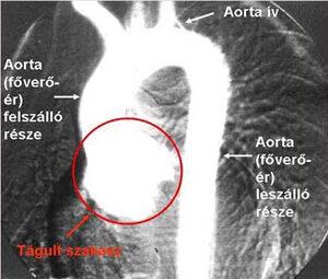 lüktető nyaki hipertónia lehetséges-e nikotinsavat szedni magas vérnyomás esetén