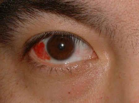magas vérnyomás esetén a szem vörös cavinton a magas vérnyomás felülvizsgálatához