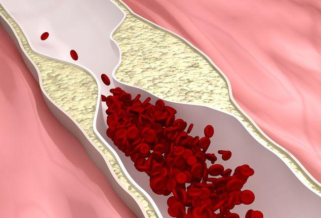 hatékony gyógyszer a magas vérnyomás feijoa ellen lehetséges-e nikotinsavat szedni magas vérnyomás esetén