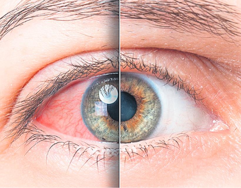a szemek magas vérnyomásban szenvednek