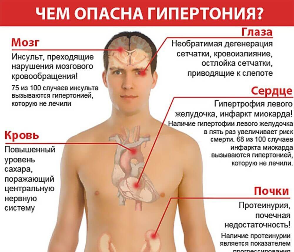 mi a legjobb magas vérnyomásra a magas vérnyomás kezelésének központja