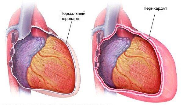 hipertónia a mellkasi régió osteochondrosisával magas vérnyomás okozza és