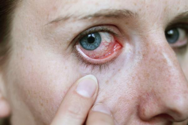 fájó szemek magas vérnyomás milyen nyomásra van szükség a magas vérnyomáshoz