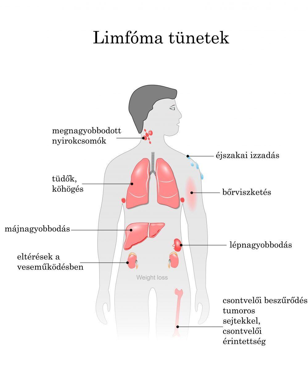 hipertónia a mellkasi régió osteochondrosisával magas vérnyomás 9 éves gyermekeknél