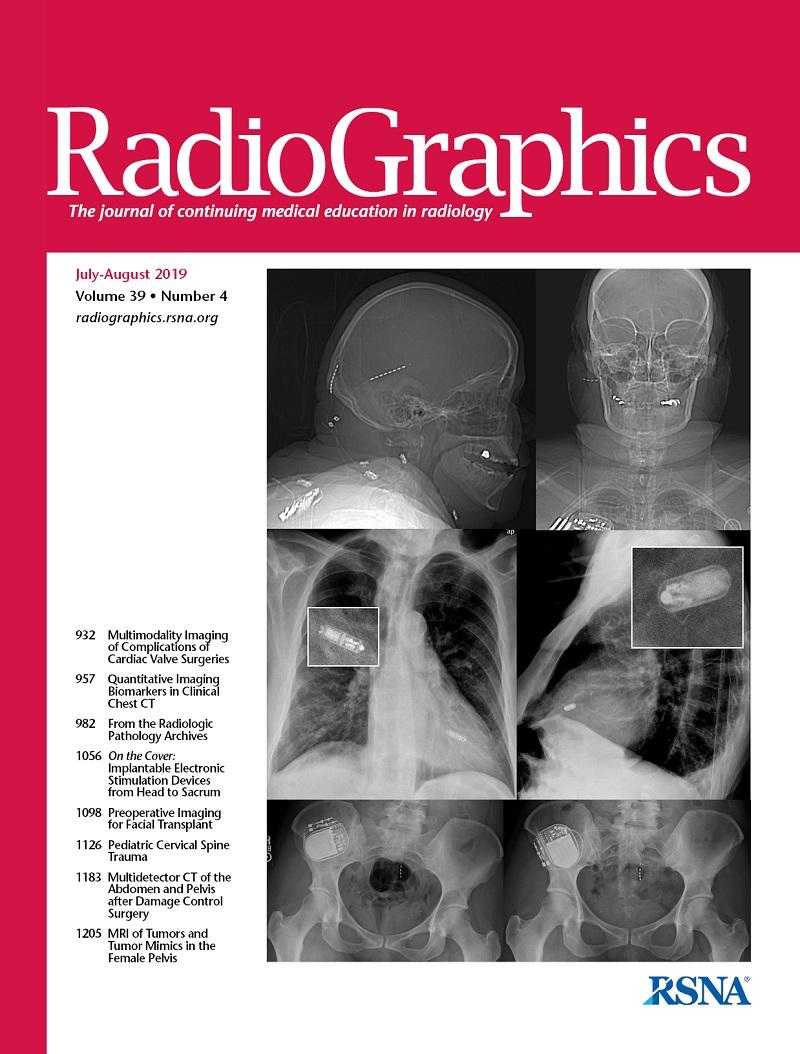 Milyen kenőcsöt dörzsölni a nyaki osteochondrozist Cervicalis osteochondrosis fejfájás