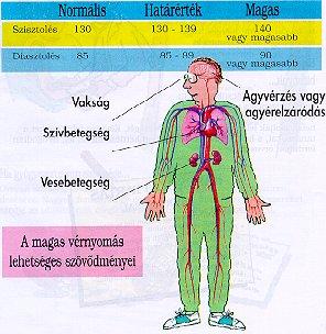 a magas vérnyomás betegségéből