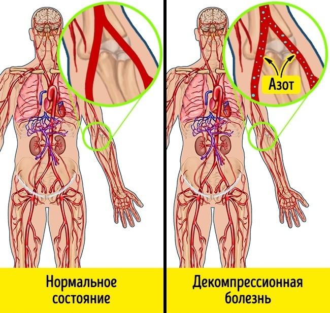 légköri nyomás hipertónia új a magas vérnyomásból
