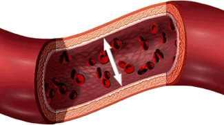 magas vérnyomás 3 stádiumú fogyatékosság gyógyítható-e az örökletes hipertónia