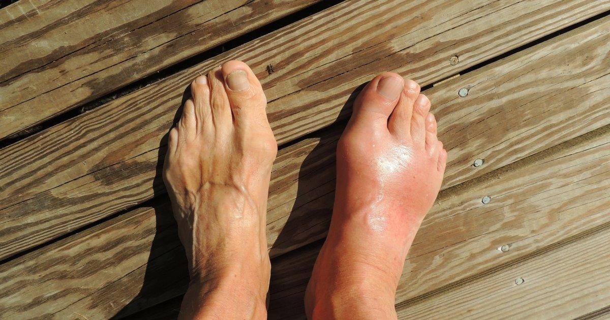 Magas vérnyomás is állhat a folytonos lábdagadás hátterében - aerobie.hu
