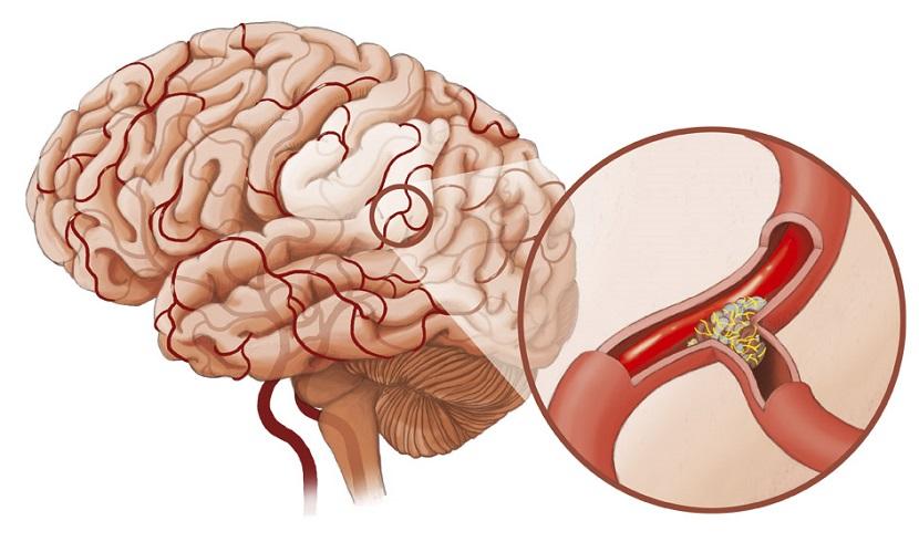 neuraszténikus hipertónia a magas vérnyomás 2 fokozatának 2 kockázata az