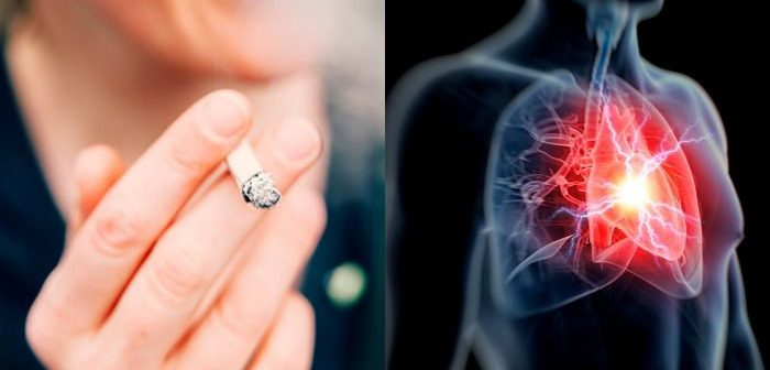 nők és magas vérnyomás magas vérnyomás betegség szerve